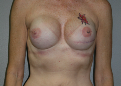 Expander Implant: Patient E