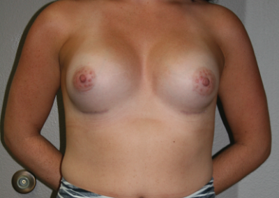 Shaped Implants: Patient D
