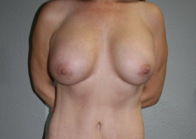 Shaped Implants: Patient E