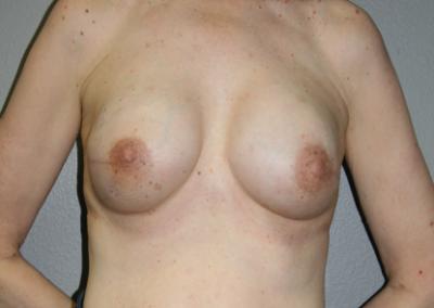 Expander Implant: Patient F