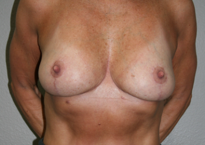 Breast Reduction Patient E
