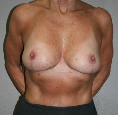 Breast Reduction Patient E