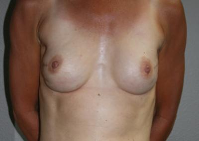 Expander Implant: Patient A