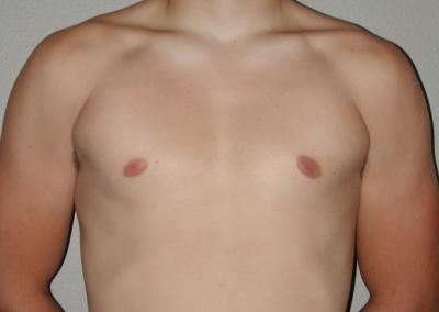 Gynecomastia: Patient A