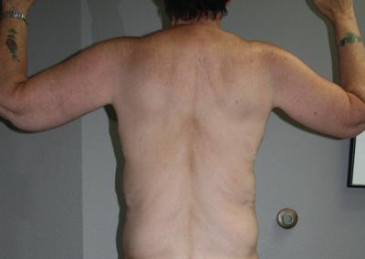 Brachioplasty: Patient C