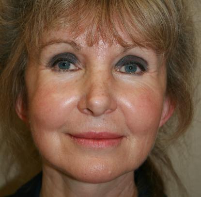 Cheek Implants: Patient A