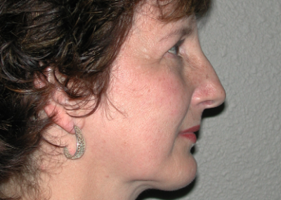 Chin Implant: Patient A