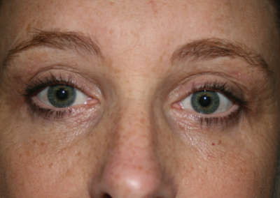 Eyelid Surgery: Patient A
